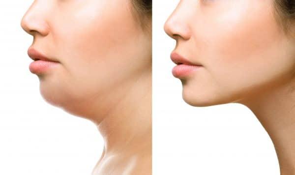 Body Sculpting Treatment | Beauty Clinic Simone