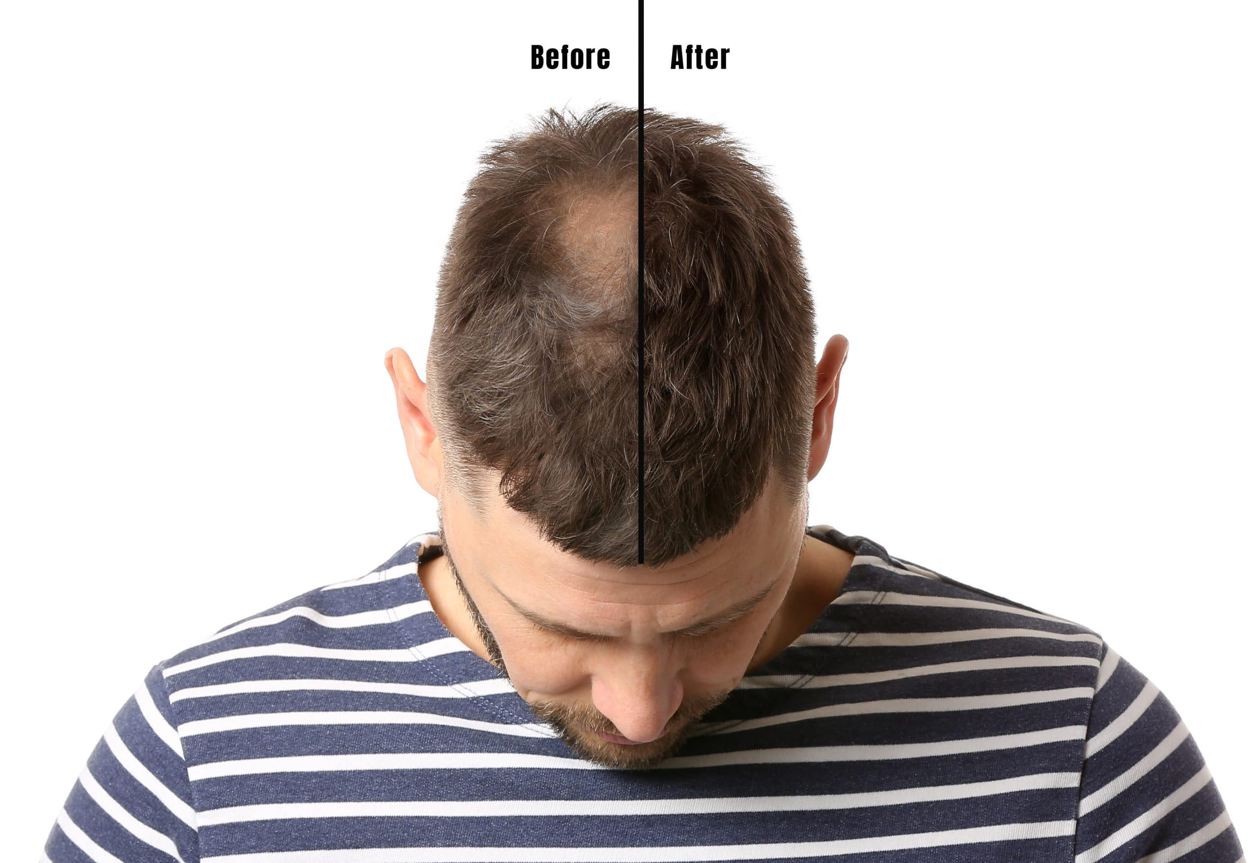 Anti-Hair Loss Treatment | Beauty Clinic Simone