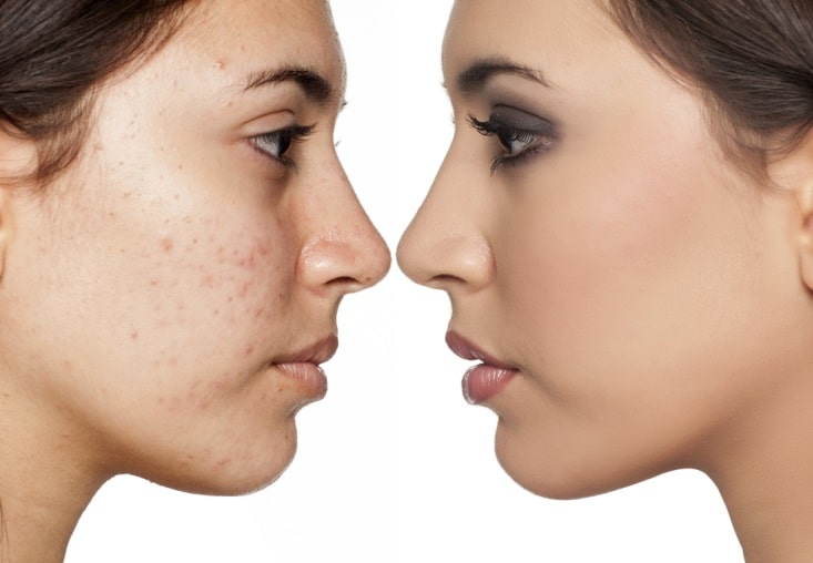 Black Spots Acne Scars | Chemical Skin Peel Treatment