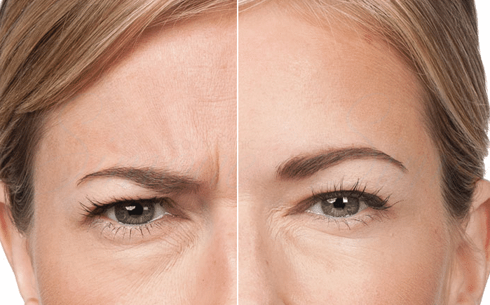 Botox | Anti Wrinkle Injections