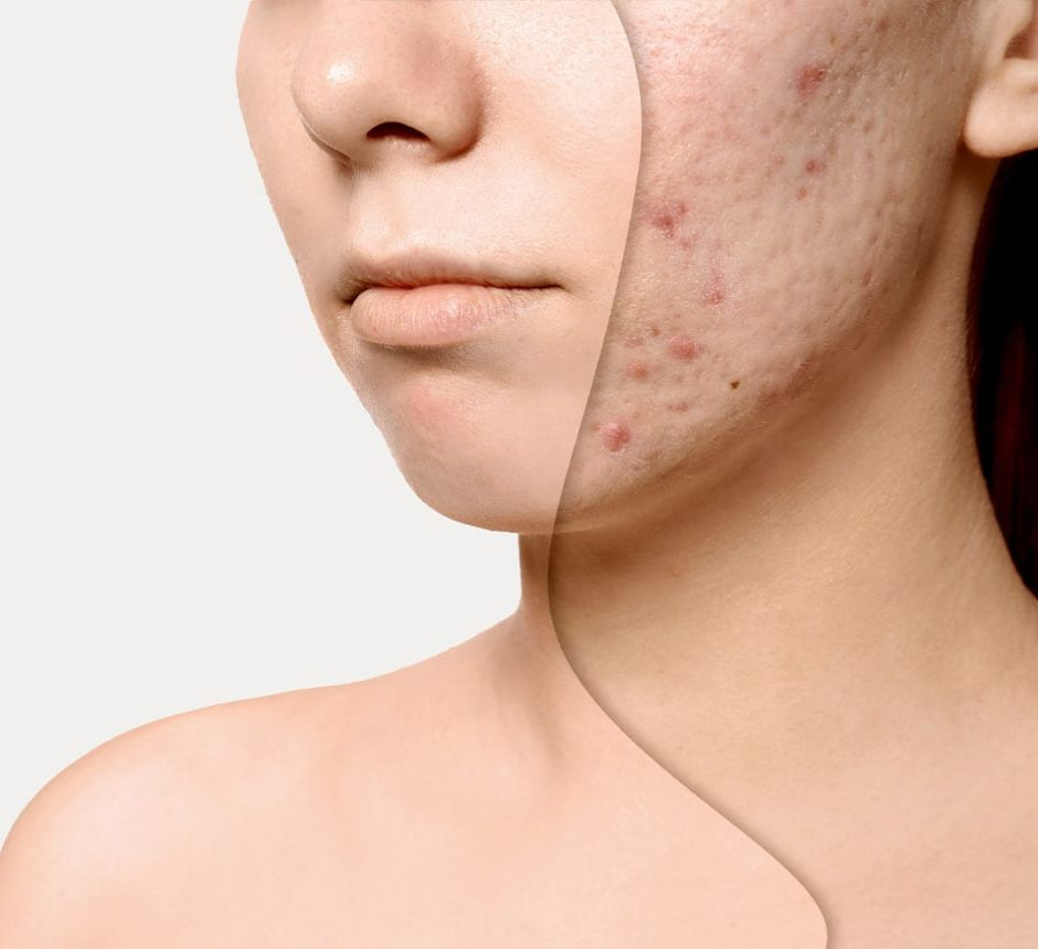 Chemical Skin Peel | Acne Scars Treatment