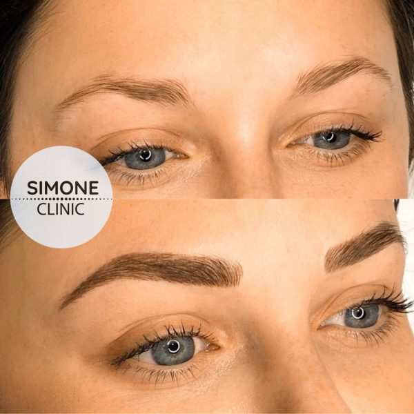 Microblading Eyebrows | Beauty Clinic Simone
