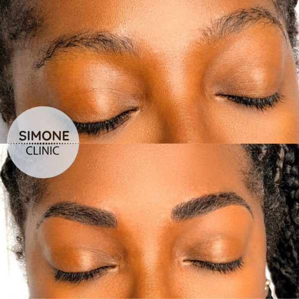 Microblading Eyebrows Treatment