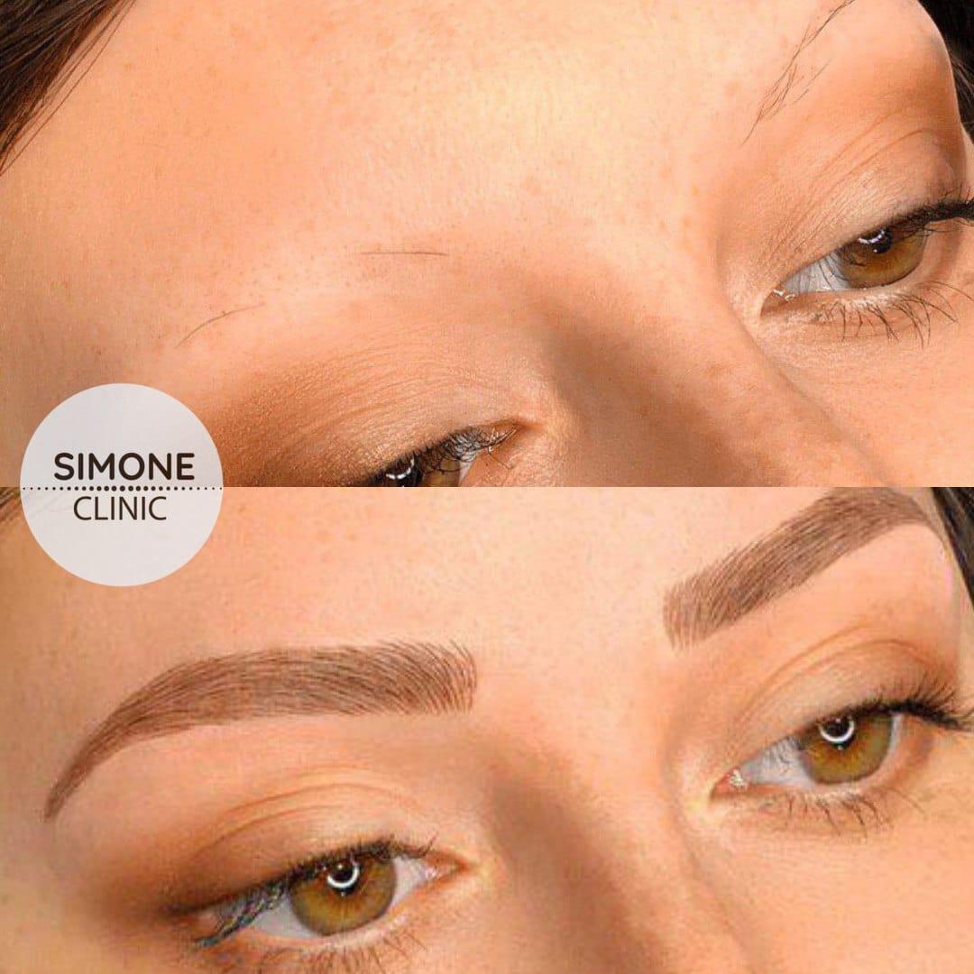 eyebrow microblading 8