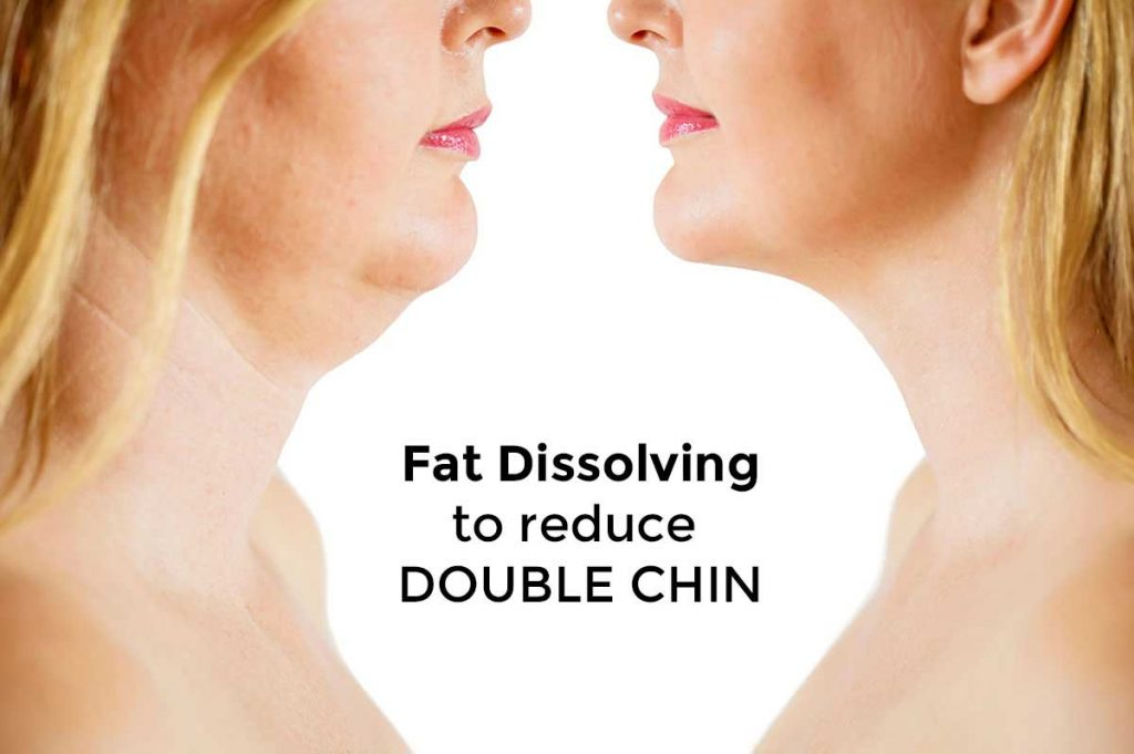 Aqualyx Treatment - Fat Dissolving Injections