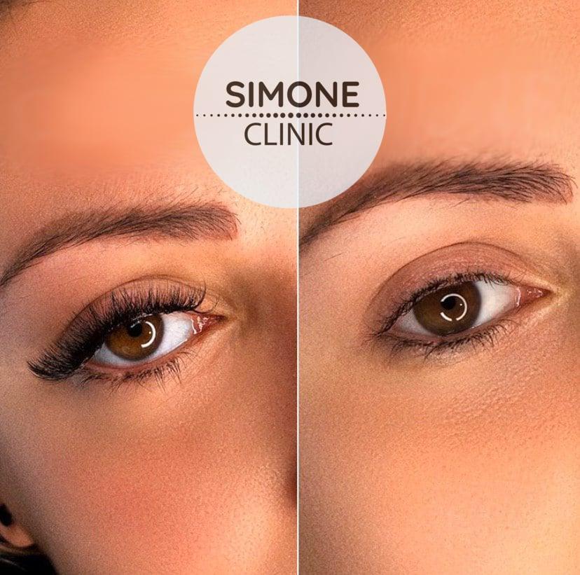 Classic Individual Eyelash Extensions | Simone Clinic
