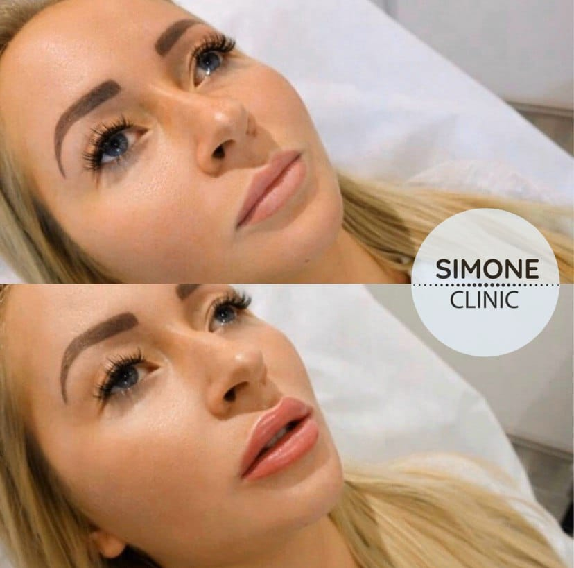 Lip Filler Treatment | Best Lip Fillers in London