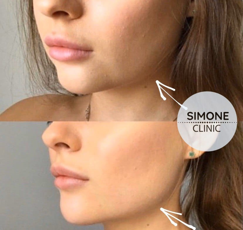 Dermal Fillers Treatment | Simone Clinic
