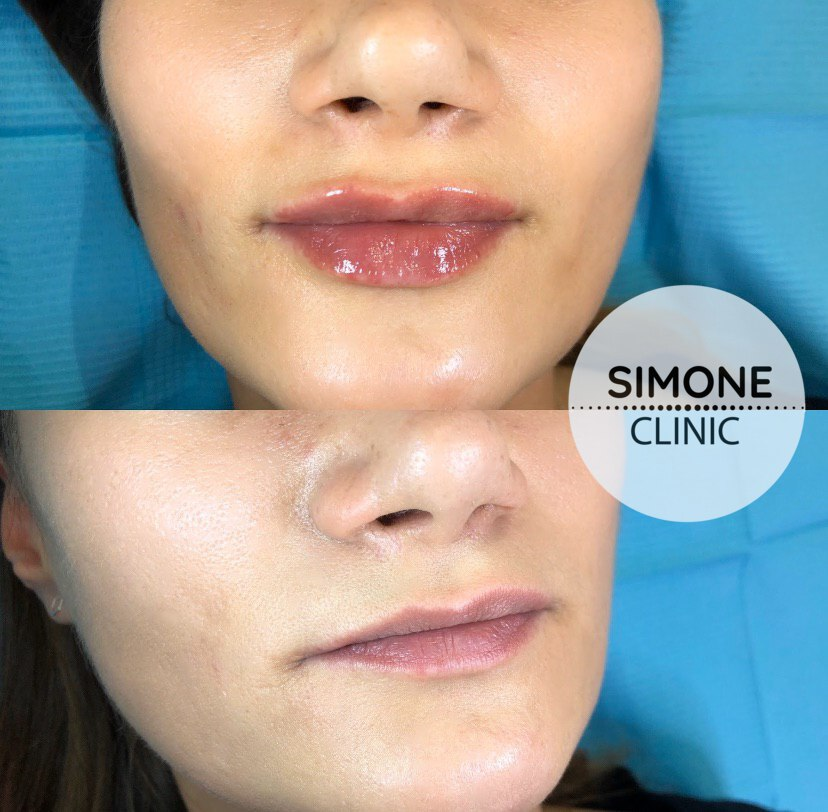 Lip Filler Treatment | Beauty Clinic Simone