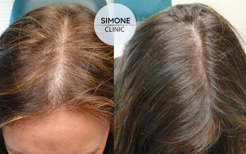 PRP Therapy for Hair Loss | Simone Clinic