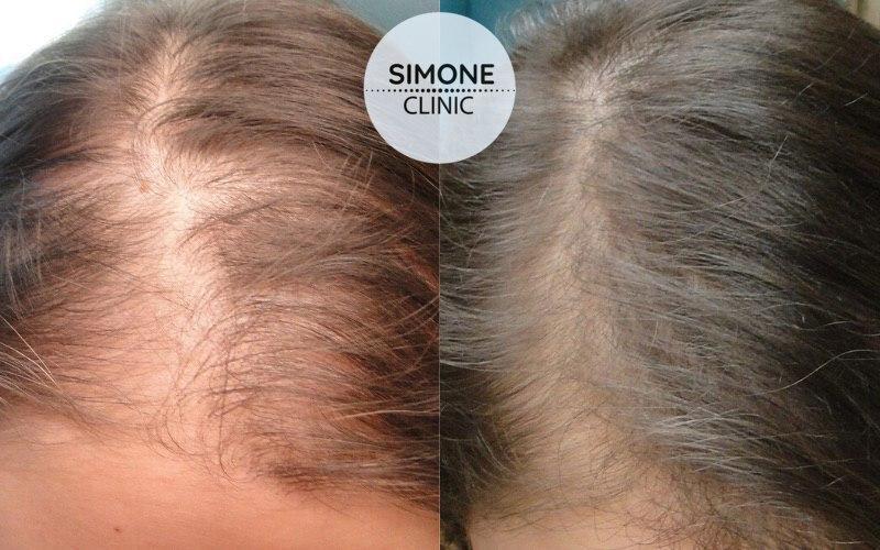 PRP - Hair Loss Treatment