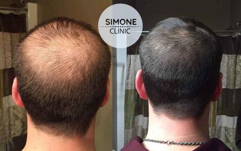 PRP for Hair Loss Treatment