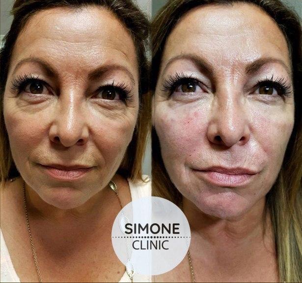 PRP Facial & Hair Treatment | Simone Clinic London