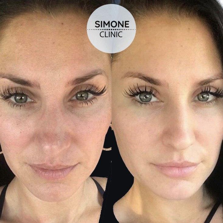PRP Vampire Facial | Simone Clinic London