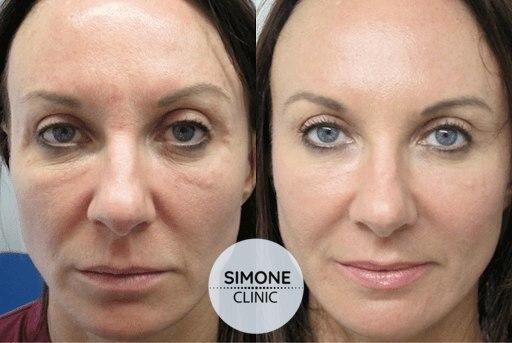 PRP Vampire Facial | Simone Clinic