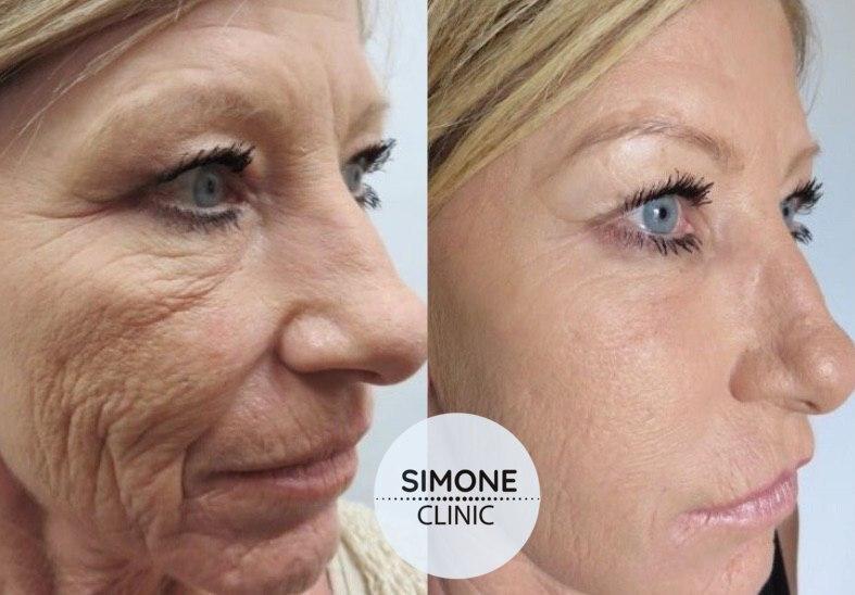 PRP Vampire Facial | PRP Facial & Hair Treatment