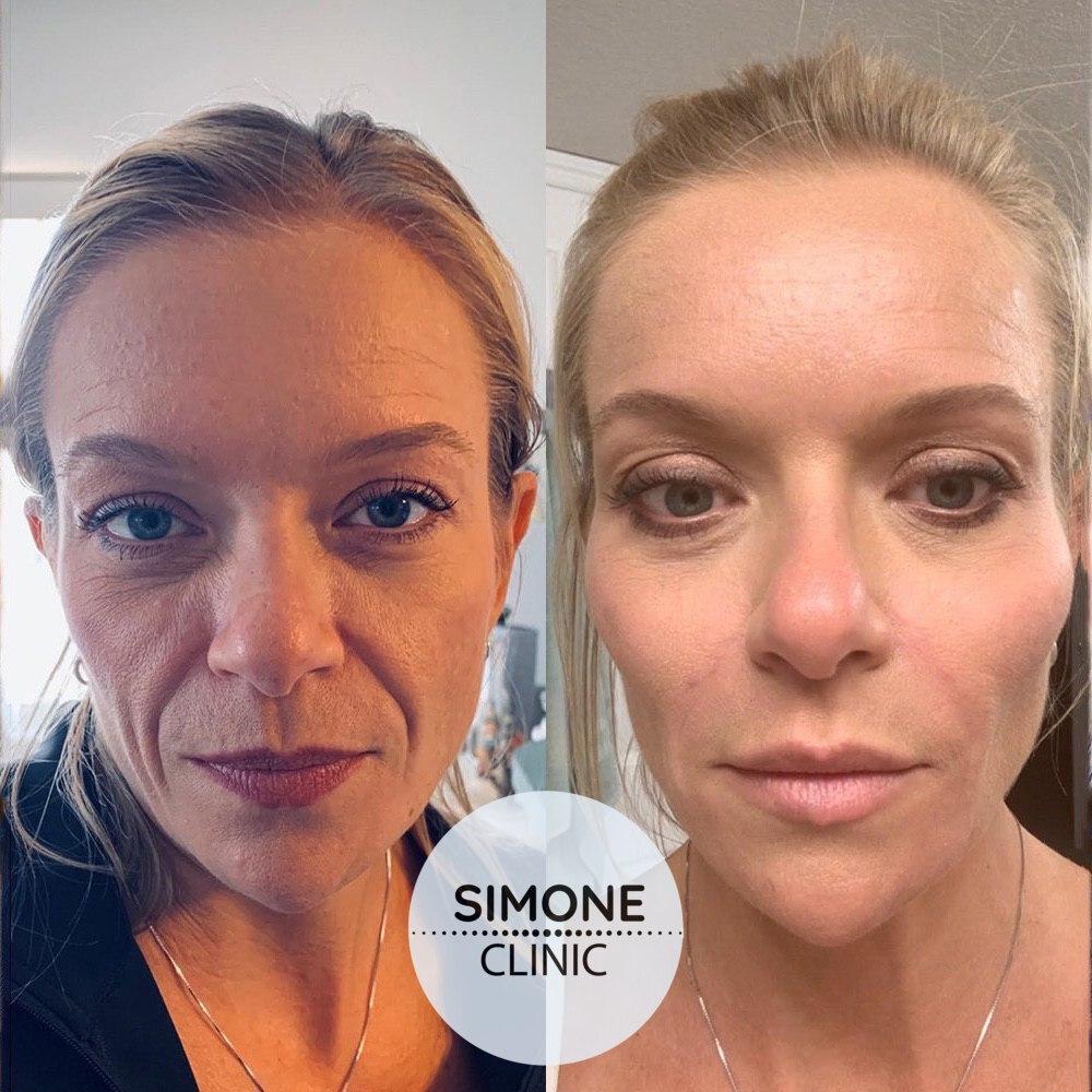 Vampire Facelift | Simone Clinic London