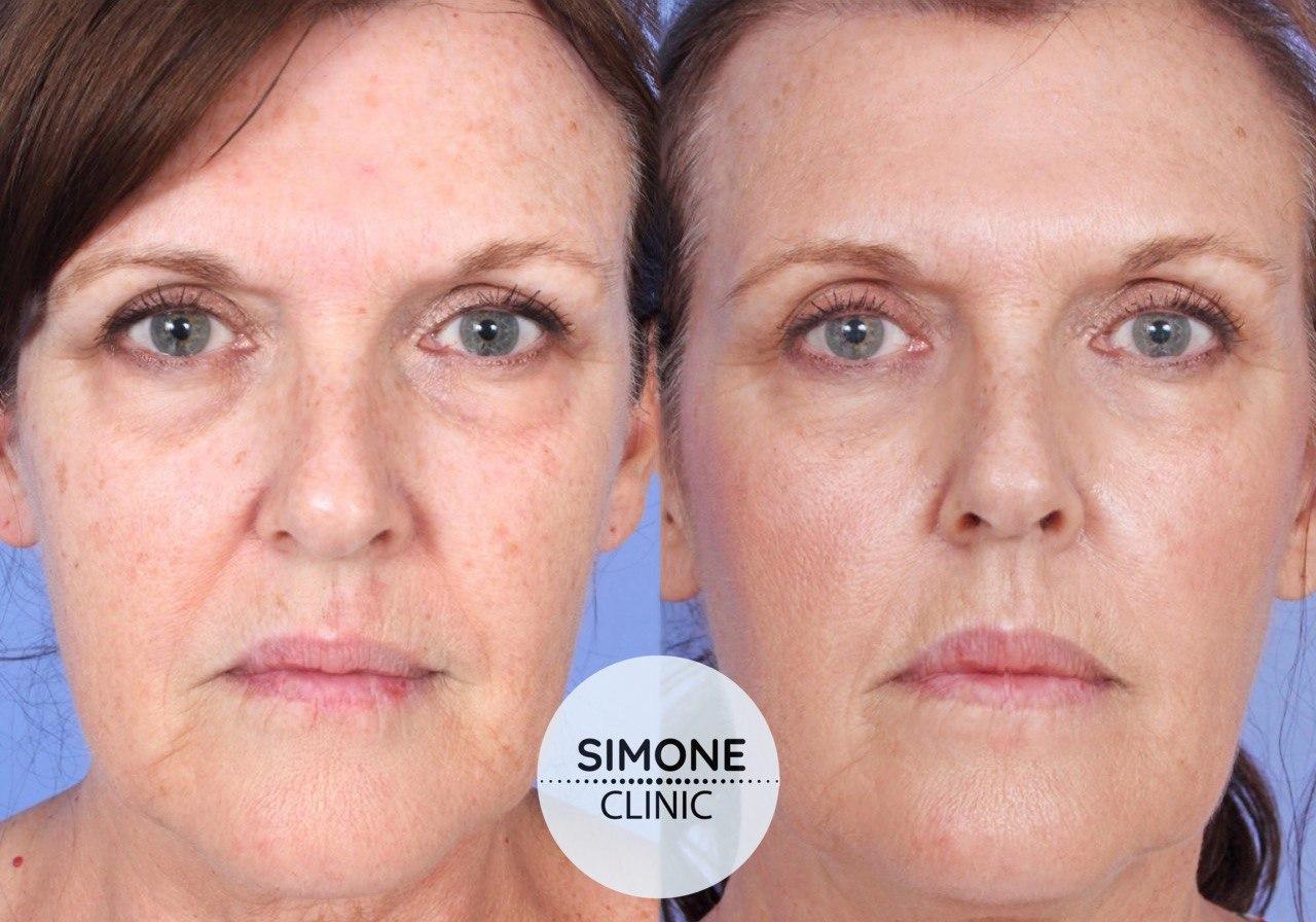 PRP Vampire Facial & Hair Treatment