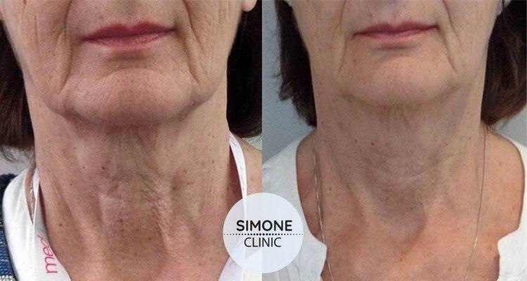 Profhilo Skin Bio-Remodeling