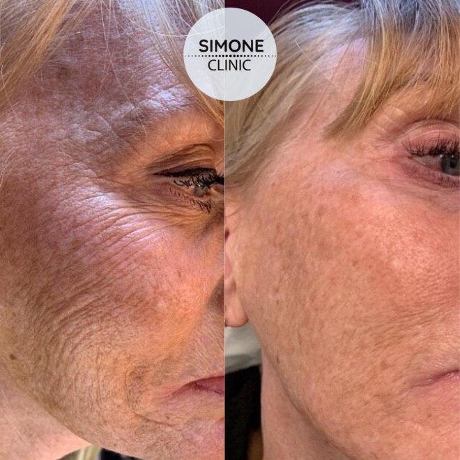 Profhilo Skin Bio-Remodeling | Simone - Aesthetic Skin Clinic