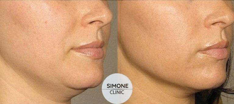 Aqualyx Fat Dissolving Injections | Beauty Clinic Simone