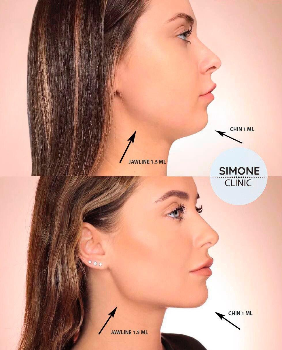 Jawline and Cheek Fillers | Dermal Fillers Treatment